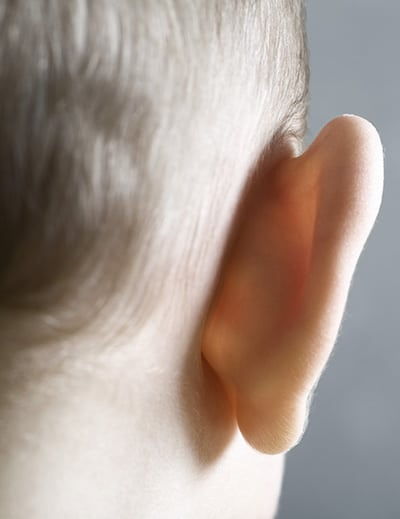 Child with a prominent ear