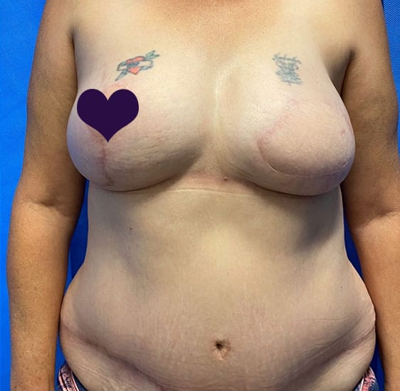 Breast reconstruction after 1