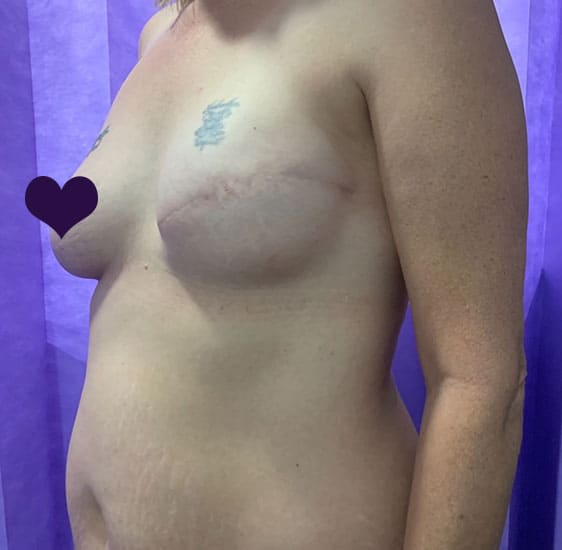 Breast reconstruction before 1