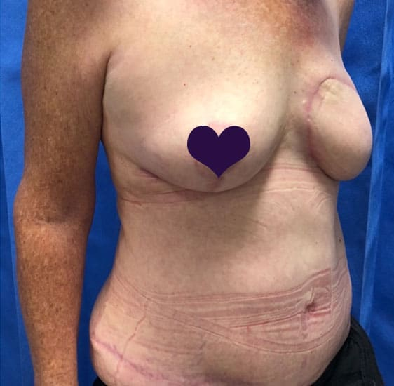 Breast reconstruction after 2