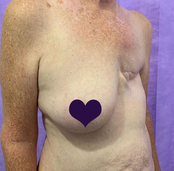 Breast reconstruction before 2