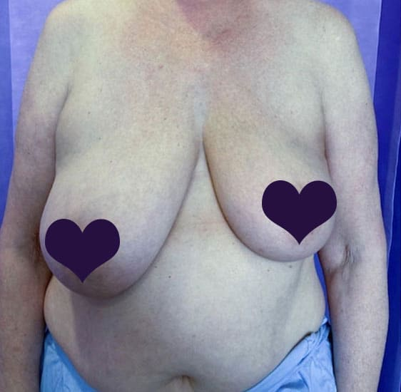 Breast reconstruction before 3