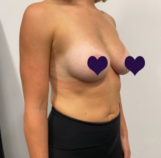Breast Augmentation After 2b