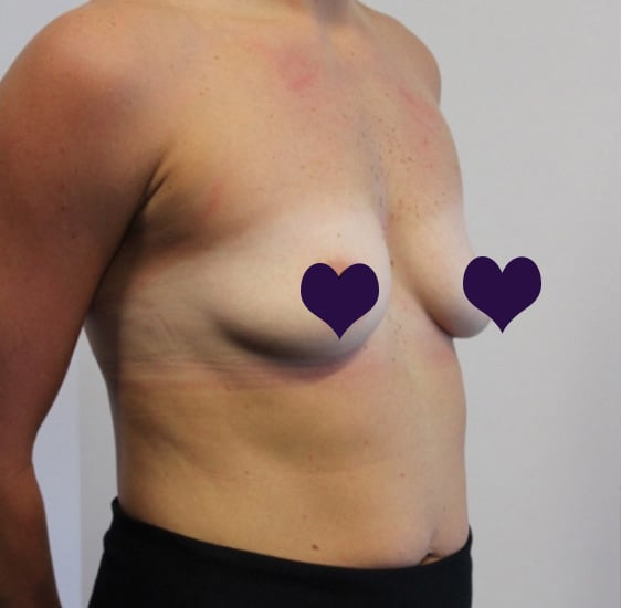 Breast Augmentation Before 2b